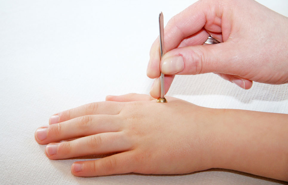 Kind wird akupunktiert